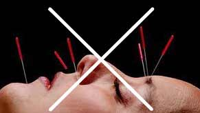 Tapping Acupuncture No Needles image